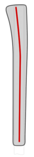cross-section illustration of typical pistol grip